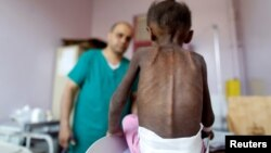 A medical worker examines a malnourished girl at a treatment center Yemen. (file photo)