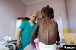 Ребенок в иностранной больнице в столице Йемена Сане. Октябрь 2018 года