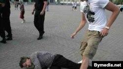 Избитый спецназовцами Анатолий Лебедько, 14 июля, Минск