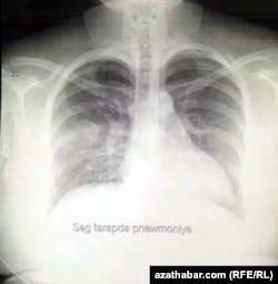 Aşgabatda COVID-19 hassasynyň öýkeniniň rentgen suraty