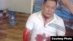 Асылан Аймуратов, заключенный тюрьмы УГ157/9, предпринявший попытку суицида.