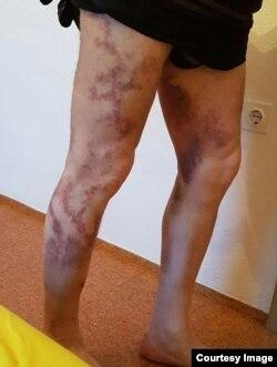 """Следы пыток на ногах Лом-Али Элбиева, показанные им правозашитникам из """"Мемориала"""""""