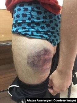 Гематомы на теле Дмитрия Свитнева после избиения в полиции