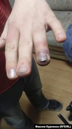 Рука Михаила Солунина после нападения