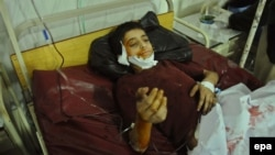 An injured young victim of the bomb blast at a hospital in Peshawar on January 23