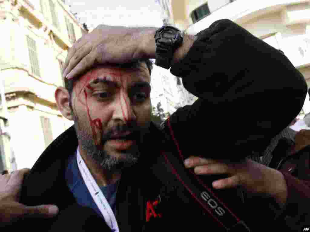 An AP news agency photographer is injured on Tahrir Square.