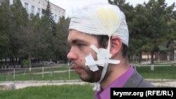 Леонід Кузьмін після побиття 17 квітня