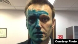 Aleksei Navalny says he has lost 80 percent of the sight in his right eye after the attack.