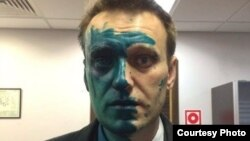 Aleksei Navalny said that his vision in the eye was still considerably impaired after surgery and that it could take several months for it to be restored.