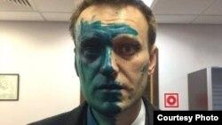 Олексій Навальний після нападу, Москва, Росія, 27 квітня 2017 року
