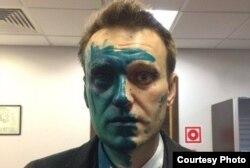 Алексей Навальный после очередного нападения