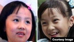 Семилетней Янь Пейи не разрешили петь на открытии пекинской Олимпиады из-за ее неровных зубов. Вместо нее пела Линь Мяоке, ставшая в одночасье звездой