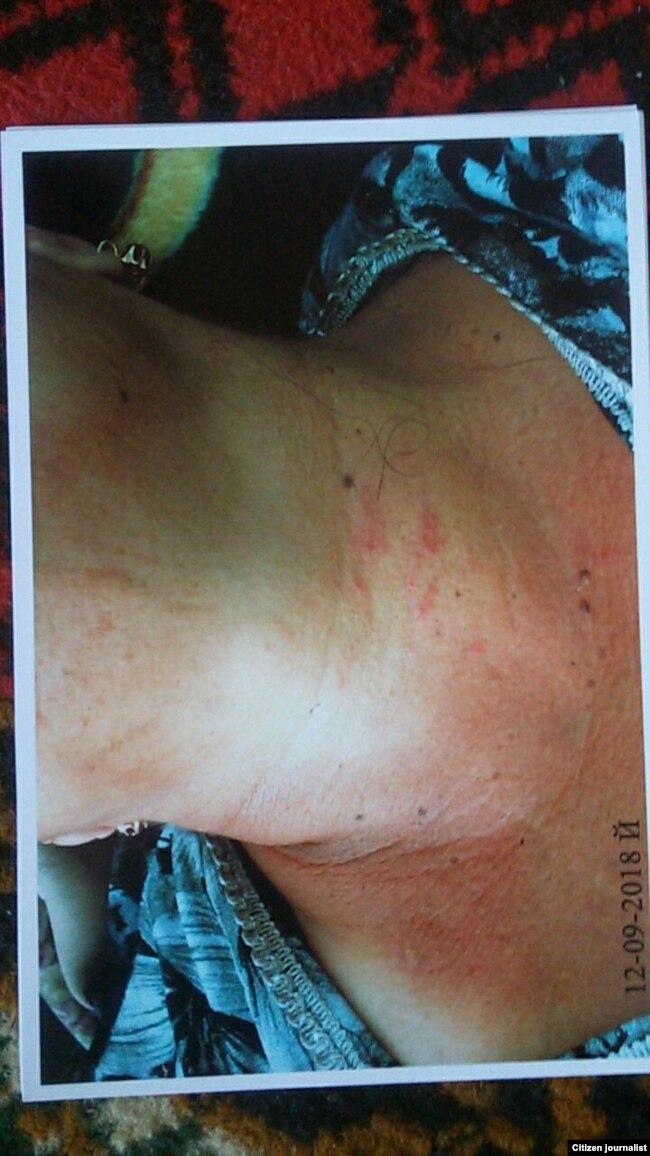 Касанская предпринимательница Фазилат Нормурадова утверждает, что хоким Бахтияр Раджабов не только оскорбил, но и душил и избивал ее.