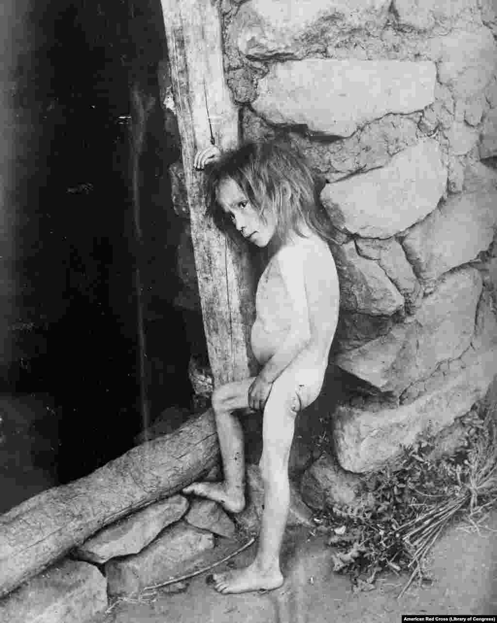 """A starving 7-year-old child in Russia's Samara region in 1921. By the time the war neared its end, Russia's economy had collapsed, crops had failed due to a drought, and the Bolsheviks' """"War Communism"""" that mandated the forcible seizure of grain from peasants left millions of Russians in a desperate situation."""