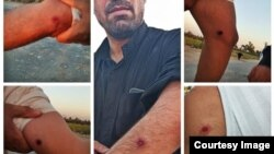 تصاویر منتشرشده از شلیک مأموران با گلولههای ساچمهای به مردم روستای ابوالفضل اهواز