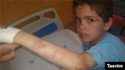 یکی از تصاویری که در گزارش خبرگزاری تسنیم منتشر شده و «علی» را با آثار کبودی روی بدنش نشان میدهد