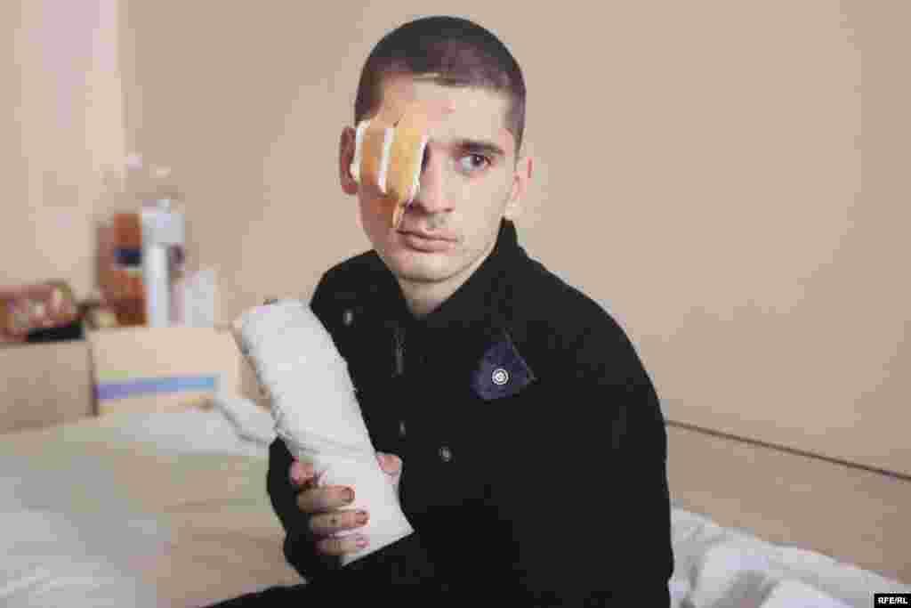 Голдиш Сергій. Отримав важкі поранення руки, одне око довелося видалити. Фото Олександра Чекменьова
