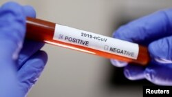 Test tube with Corona virus