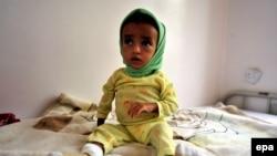 یک طفل مصاب به سوء تغذی