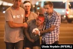 Полиция жасағы наразылық акциясын күшпен басқан кезде зардап шеккен адамдар. Минск, 10 тамыз 2020 жыл.
