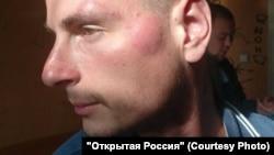 Активист штаба Навального во Владивостоке Андрей Яроцкий после удара полицейского
