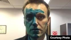 Алексей Навальный после нападения