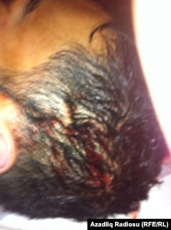 Rəşad Mehdiyevin meyidində işgəncə olduğu iddia edilən yaralar