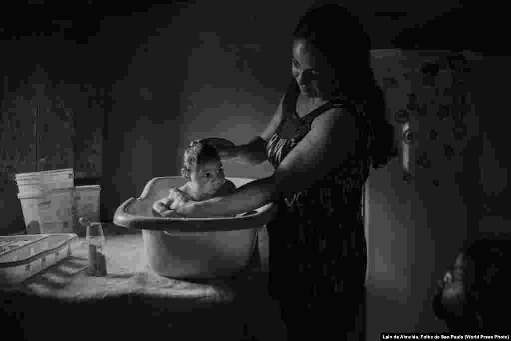 Adriana Cordeiro Soares bathes her son Joao Miguel, who was born with microcephaly caused by the Zika virus, in her house in the rural area of Sao Vicente do Serido, Brazil. Contemporary Issues -- Second Prize, Stories (Lalo de Almeida, for Folha de Sao Paulo)