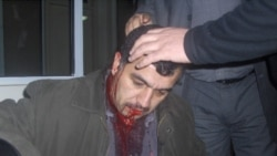 Üzeyir Cəfərov aprelin 20-də gecə saatlarında işdən evə gələrkən iki nəfərin hücumuna məruz qalıb