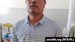 Специалист отдела по земельным ресурсам и государственному кадастру хокимията Гузарского района Кашкадарьинской области Фахриддин Курбанов утверждает, что замхокима сломал ему нос.