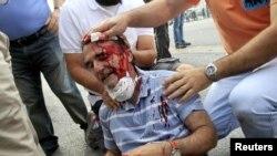 Пострадавший в столкновениях с полицией. Афины, 29 июня 2011 года.