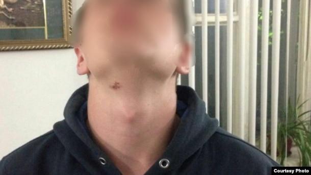 Предположительно, следы от пыток на шее одного из обвиняемых.