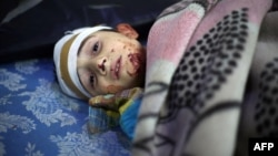 A wounded Syrian boy looks on at a makeshift hospital following reported Syrian government air strikes on the rebel-held town of Arbin on the outskirts of the capital, Damascus, on May 9.