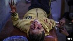 یک کودک سوری که بر اثر بمباران ارتش سوریه در دوما زخمی شده است.