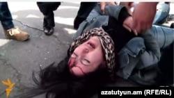 Ռուզաննա Եղնուկյանը՝ բողոքի ակցիայի ժամանակ վնասվածք ստանալուց հետո, 25-ը մարտի, 2016թ․