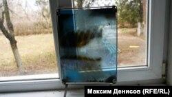 Рентгеновский снимок.