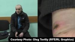 Колишній ув'язнений колонії Денис Кметь та рани від тортур