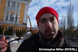 Canadian journalist Michael Colborne was punched in the face by a counterdemonstrators at a Transgender rights rally in Kyiv on November 18. He suffered a swollen lip and cuts on his face from his broken glasses.