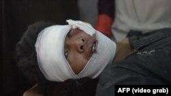 Авганистан- во бомба поставена на патот загинаа 65 луѓе