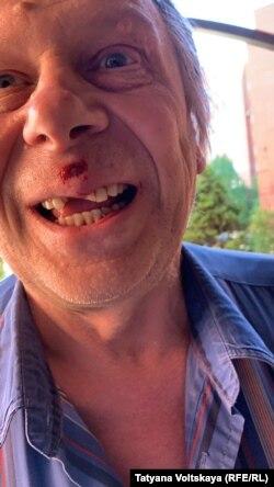 В результате конфликта соседу выбили зубы