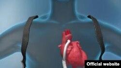 Pumpa implantirana da podrži pumpanje srca