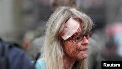 Женщина, раненная в результате взрыва. Прага, 29 апреля 2013 года.