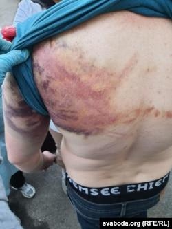 Следы избиений на спине одного из задержанных после президентских выборов в Минске