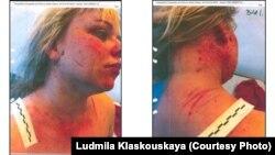 Паводле Людмілы Класкоўскай, гэтыя здымкі Вольгі Класкоўскай зрабілі адразу пасьля здарэньня, калі Вольга нібыта з нажом накінулася на мужа