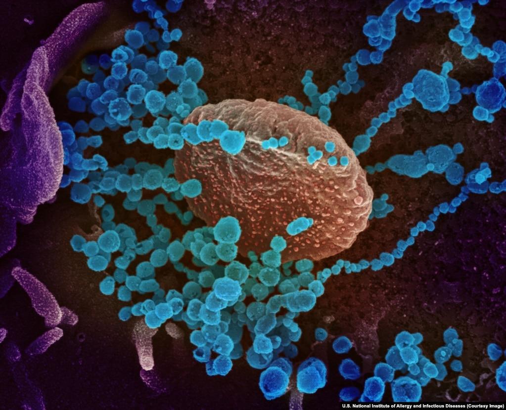 Віріони SARS-CoV-2, що розростаються в клітині людського організму. Всі фотографії в цій галереї розфарбовані з використанням спеціальних програм і Photoshop'у