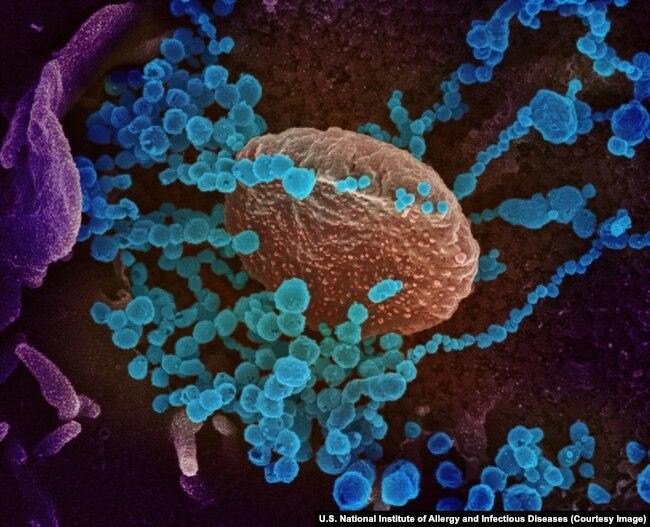 Вирионы SARS-CoV-2, разрастающиеся в клетке человеческого организма