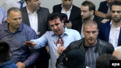 Zoran Zaev (center) was injured in the 2017 invasion of the parliament in Skopje.