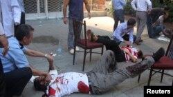 Анкараның ортасында болған жарылыстан зардап шеккен адамдар. 20 қыркүйек 2012 жыл. (Көрнекі сурет).