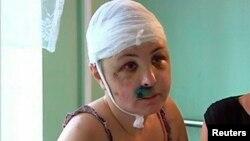 Ірина Крашкова в лікарні Миколаєва, 2 липня 2013 року