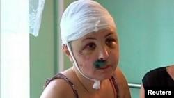 Ірина Крашкова в лікарні, 2 липня 2013 року